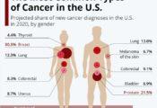 Các loại ung thư phổ biến nhất ở Hoa Kỳ